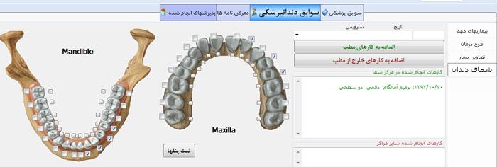 شمای دندانهای کارشده در نرم افزار کلینیک دندانپزشکی دادکین