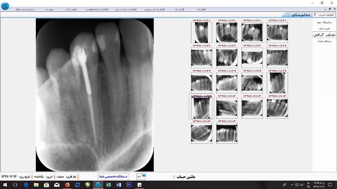 ارتباط با RVG در نرم افزار کلینیک دندانپزشکی دادکین