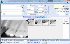 نرم افزار کلینیک دندانپزشکی دادکین فرم پرونده دندانپزشکی بیمار